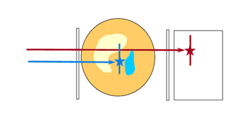 Synopsis: Giving Proton Therapy Energies a Boost