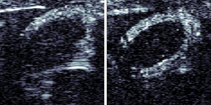 Synopsis: Three Pulses for Clearer Ultrasound Images
